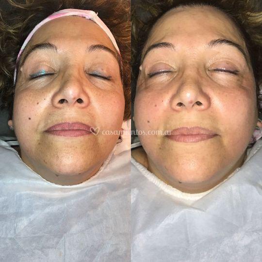 Preparacion facial madrinas